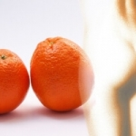 Best Cellulite Treatments and Exercises